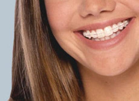 Tipos de brackets y ortodoncia invisible for W de porter ortodoncia